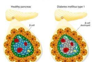 What Destroys Beta Cells In Type 1 Diabetes?