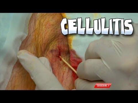 Cellulitis In A Diabetic Patient