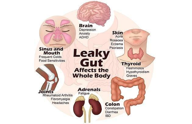 Leaky Gut and Diabetes: Whats the Connection?