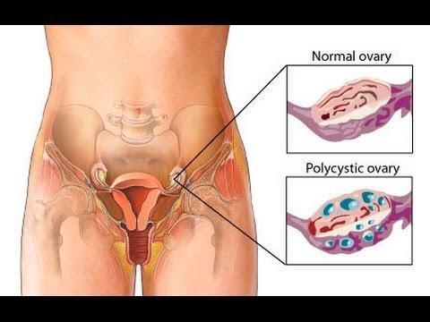 Polycystic Ovarian Syndrome Fertility Treatment With Metformin (glucophage)