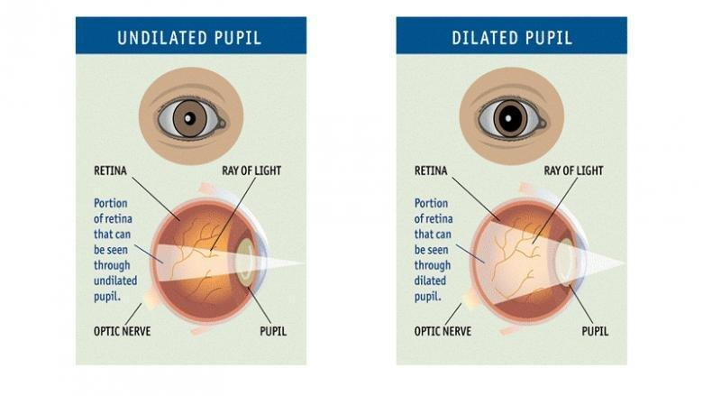 Can An Optometrist Do A Diabetic Eye Exam?