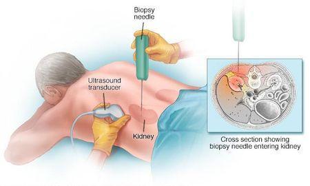 Diabetic Nephropathy Diagnosis