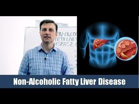 Is Metformin Safe For A Fatty Liver
