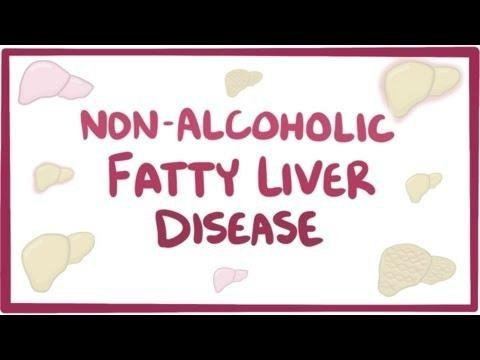 Treatment Of Nonalcoholic Fatty Liver Disease (nafld) In Patients With Type 2 Diabetes Mellitus