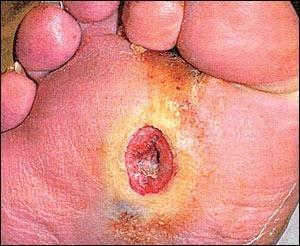Diabetic Foot Ulcers: Pathogenesis And Management