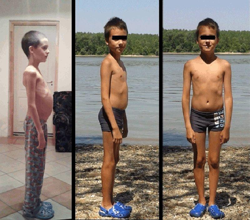 A Child With Type 1 Diabetes Successfully Treated With The Paleolithic Ketogenic Diet