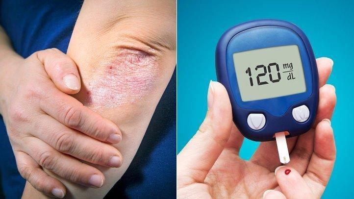 How Psoriasis and Type 2 Diabetes May Be Linked