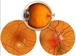 Diabetic Retinopathy Stages