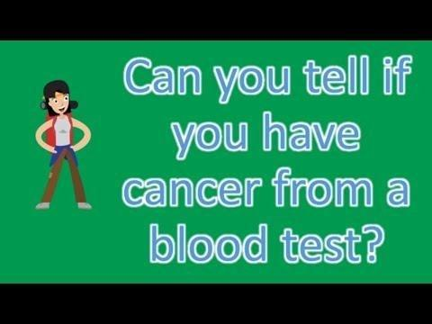Which Laboratory Test Is Used To Diagnose Diabetes? What Indicates A Positive Result?
