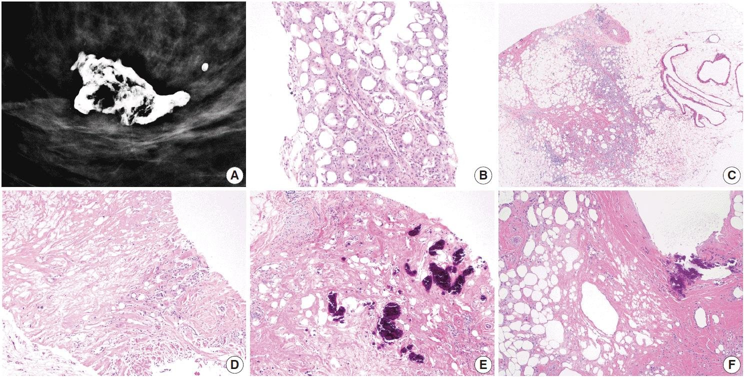 A Review Of Inflammatory Processes Of The Breast With A Focus On Diagnosis In Core Biopsy Samples