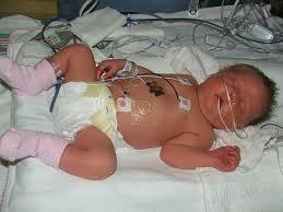 Baby Born At 38 Weeks Gestational Diabetes