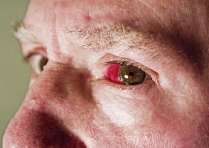 Can Diabetes Cause Broken Blood Vessels In The Eye?