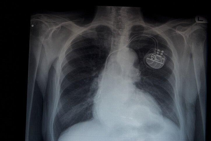 Medtronic's Micra | The World's Smallest Pacemaker