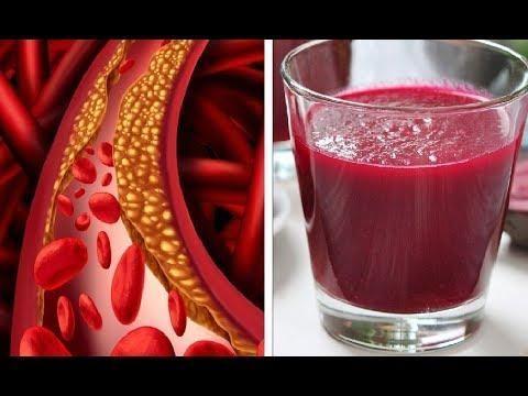 High Blood Sugar Symptoms List