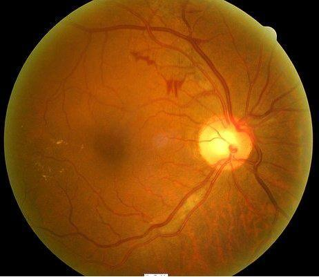 Proliferative Diabetic Retinopathy Without Macular Edema Icd 10