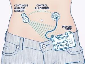 Medtronic Closed Loop Insulin Pump