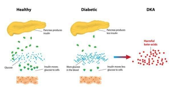 What Organs Are Affected By Ketoacidosis?