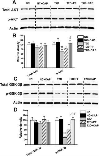 Capsaicin Reduces Alzheimer-associated Tau Changes In The Hippocampus Of Type 2 Diabetes Rats