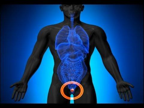 Diabetes Tied To Enlarged Prostate