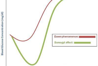 Somogyi Effect Vs Dawn Phenomenon Usmle