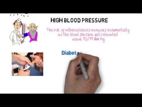 Insulin Resistance, Type 2 Diabetes And Atherosclerosis