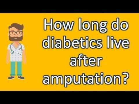 How Often Do You Check Your Blood Sugar With Type 2 Diabetes ? |long Live Facts – How Do Diabetics Check Blood Sugar