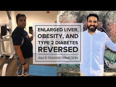 Acute Reversal Of Experimental Diabetic Ketoacidosis