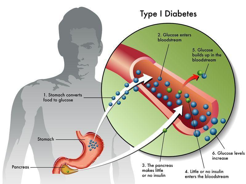 New Staging System For Presymptomatic Type 1 Diabetes