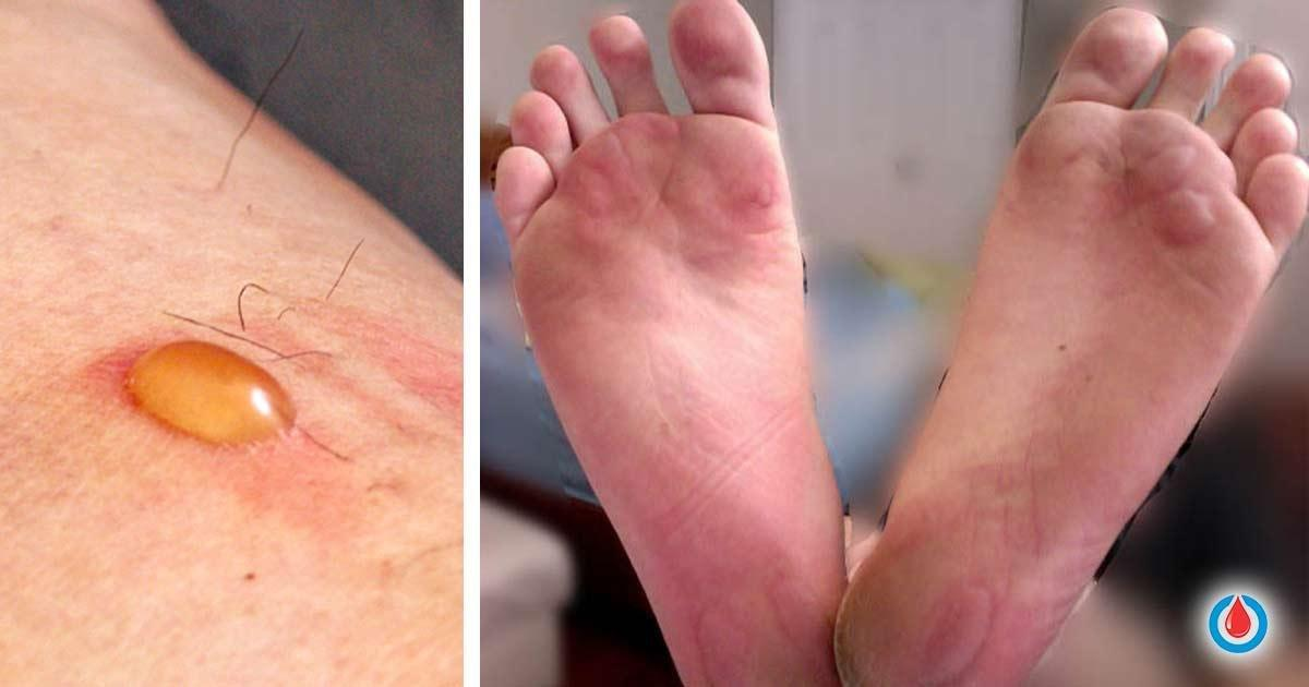 What To Do If You Have Diabetic Blisters