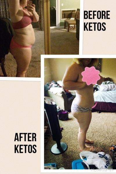 The Big Fat Lie. Keto-os Review And Weight Loss Results.