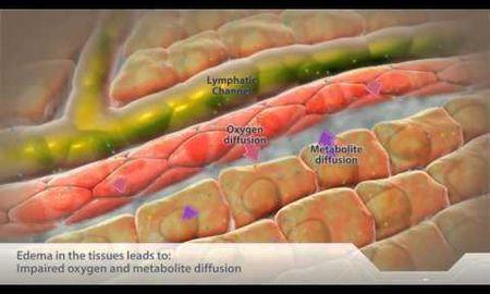 Intracellular Acidosis Definition
