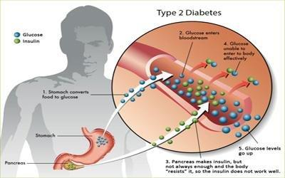 Diabetes Type Ii Treatment In India, Stem Cell Therapy For Diabetes Type 2