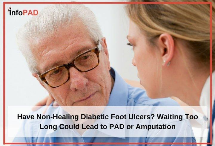 Have Non-healing Diabetic Foot Ulcers? Waiting Too Long Could Lead To Pad Or Amputation