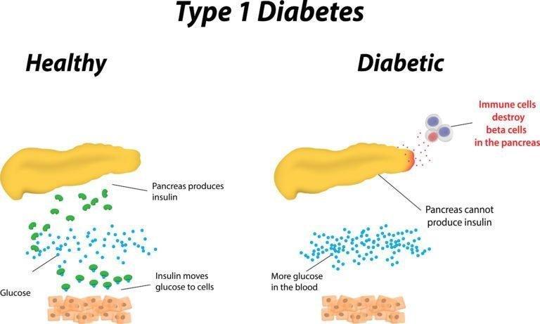 Causes Of Type 1 Diabetes