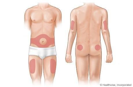 Picture Of Insulin Injection Areas