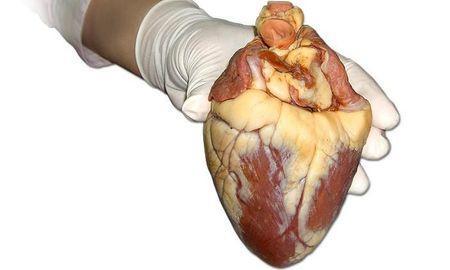 Diabetes Increases Atherosclerosis