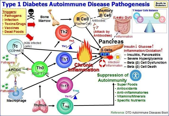 Type 1 Diabetes: Autoimmune Disease, Pathology & Management