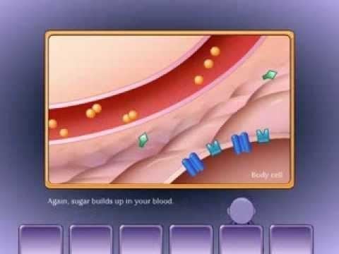 Is Type 1 Diabetes Is Caused By A Mutated Gene?