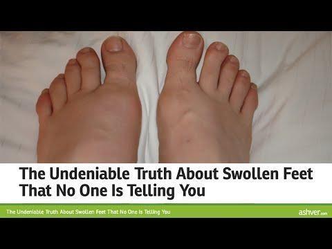 Swollen Hands And Feet Diabetes