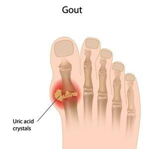 Can Diabetes Cause Gout?
