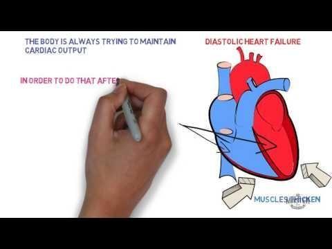 Diabetes And Heart Disease Pathophysiology
