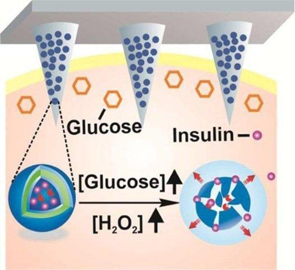 Skin Patch Automatically Releases Insulin To Control Blood Sugar