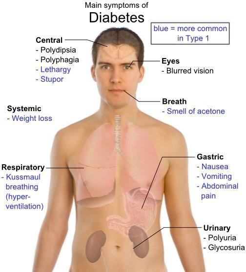 Insulin Shock Vs Diabetic Coma