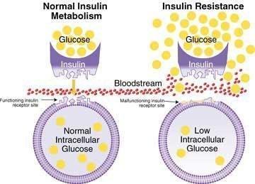 Insulin Resistance: Definition, Symptoms & Treatment