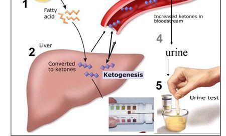 Hcg Ketones In Urine