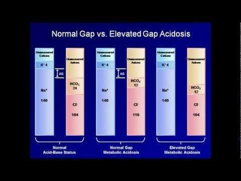 Dka Anion Gap