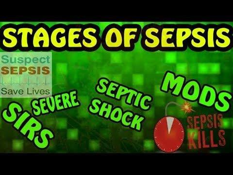 Warning: All Sepsis Is Severe Sepsis