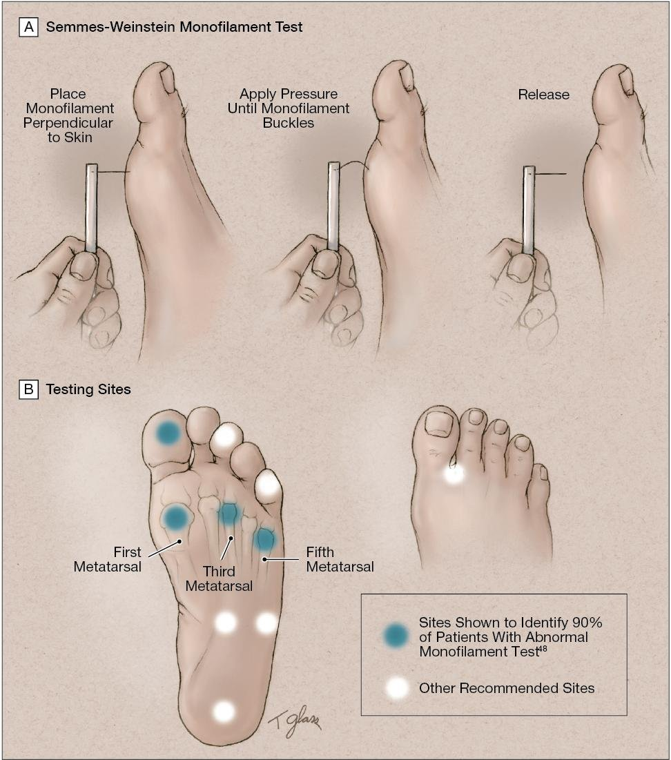 Preventing Foot Ulcers In Patients With Diabetes