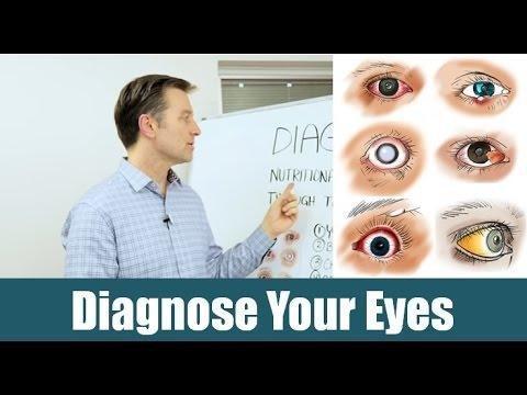 Dark Circles Under Eyes By Diabetes 1?