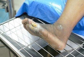 Coconut Oil Diabetic Foot